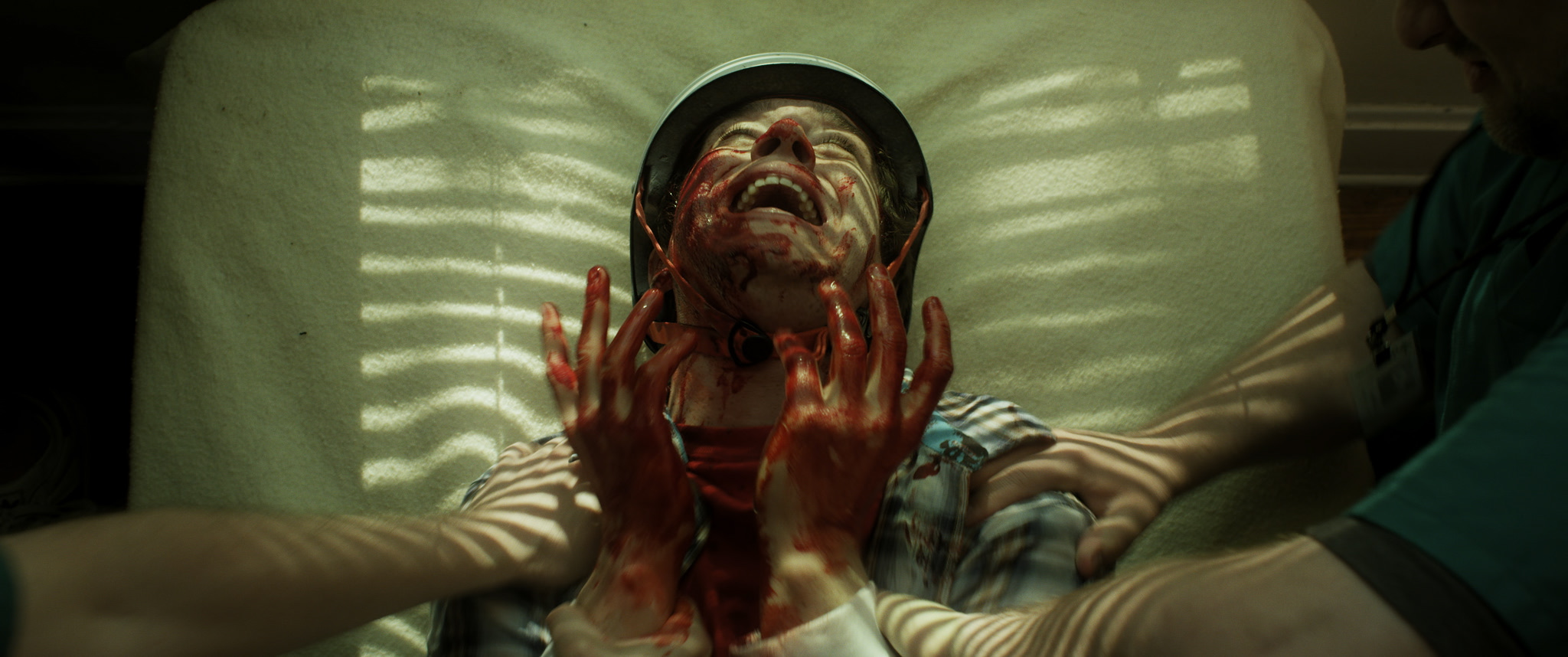 basement 2 chester writhes in agony after his attack on